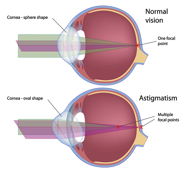 Astigmatism Treatment Waccabuc