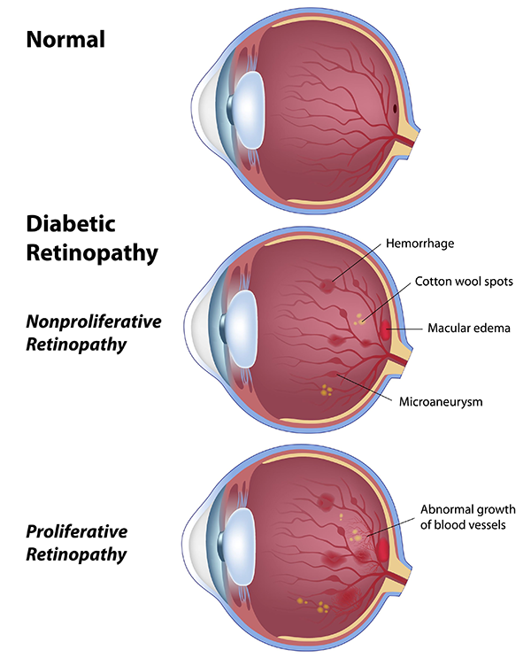diabetic eye care cross river new york