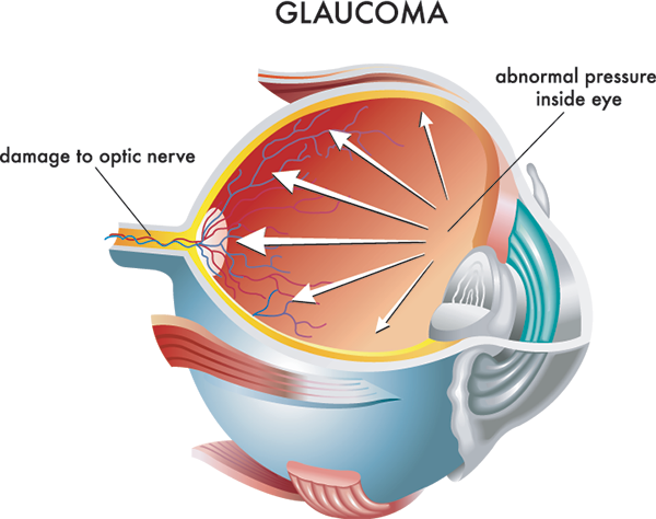 glaucoma specialist corss river