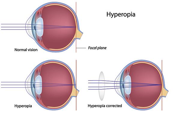 hyperopia diagnózis)